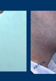 Πωγωνοπλαστική πριν και μετά