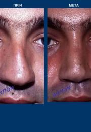 Ρινοπλαστική πριν και μετά