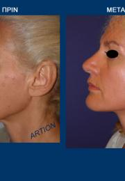 Face Lift (ρυτιδεκτομή προσώπου) πριν και μετά