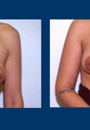Σωληνωτοί μαστοί πριν και μετά