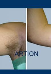 Αφαίρεση τατουάζ πριν και μετά